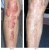 AROGYAM PURE HERBS KIT FOR PSORIASIS